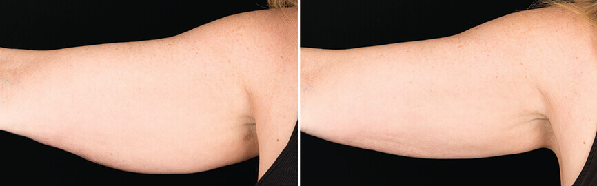 Dr Melinda Silva COOLSCULPTING before and after arms