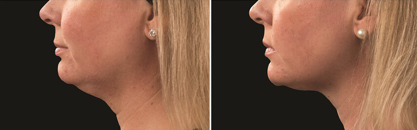 Dr Melinda Silva COOLSCULPTING before and after chin